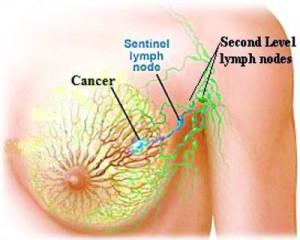 Linfonodo sentinella, identificazione dei tumori al seno